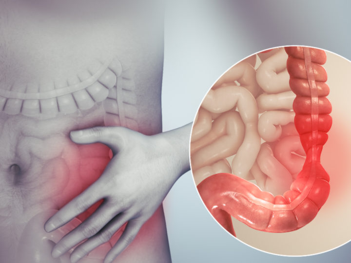 What is irritable bowel syndrome Causes and Treatment