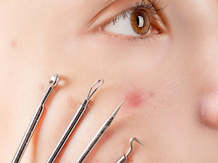 Full Guide On Types And Stages Of Pimples
